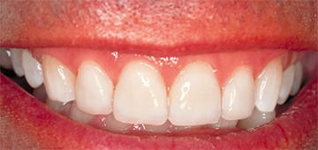 white tooth - dental clinics, abu dhabi