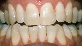 Before Teeth Bleaching