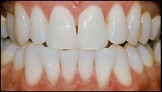 After Teeth Bleaching