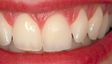 tooth image - veneers treatment - dental clinics, abu dhabi