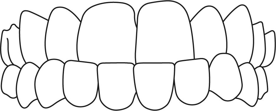 cross bite image